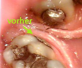 durch zahnschmerzen kein kind bekommen